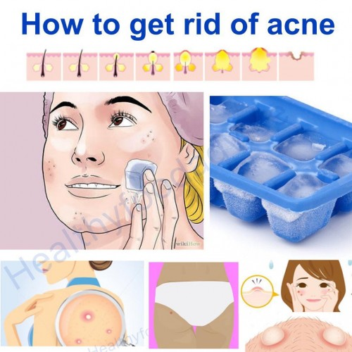 How to Get Rid of Acne in 12 Hours